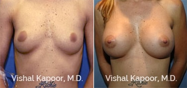 Patient 03 Front View Breast Augmentation Beverly Hills Cosmetic Plastic Surgery Doc