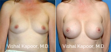 Patient 11 Front View Breast Augmentation Beverly Hills Cosmetic Plastic Surgery Doc