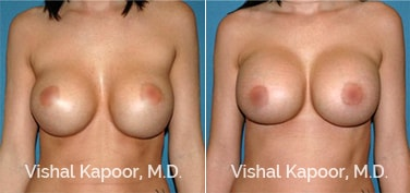 Patient 01 Front View Breast Augmentation Revision Beverly Hills Cosmetic Plastic Surgery Doc