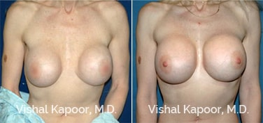 Patient 02 Front View Breast Augmentation Revision Beverly Hills Cosmetic Plastic Surgery Doc