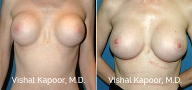 Patient 03 Front View Breast Augmentation Revision Beverly Hills Cosmetic Plastic Surgery Doc