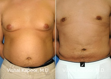 Patient 02 Front View Male Breast Reduction Beverly Hills Cosmetic Plastic Surgery Doc