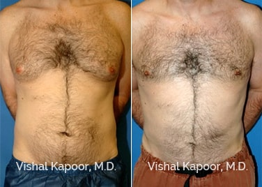 Patient 03 Front View Male Breast Reduction Beverly Hills Cosmetic Plastic Surgery Doc