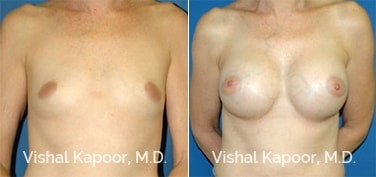Patient 12 Front View Breast Augmentation Beverly Hills Cosmetic Plastic Surgery Doc