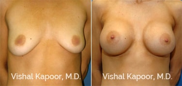 Patient 13 Front View Breast Augmentation Beverly Hills Cosmetic Plastic Surgery Doc