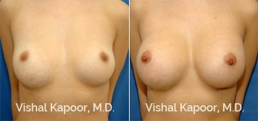 Patient 14 Front View Breast Augmentation Beverly Hills Cosmetic Plastic Surgery Doc