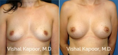 Patient 15 Front View Breast Augmentation Beverly Hills Cosmetic Plastic Surgery Doc