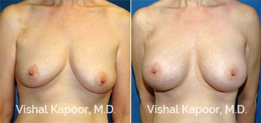 Patient 16 Front View Breast Augmentation Beverly Hills Cosmetic Plastic Surgery Doc