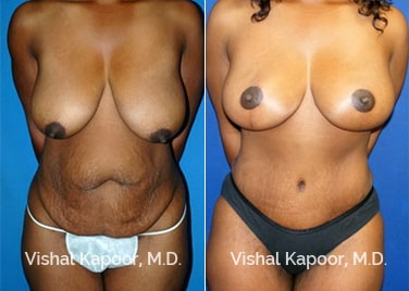 Patient 03 Front View Tummy Tuck Beverly Hills Cosmetic Plastic Surgery Doc