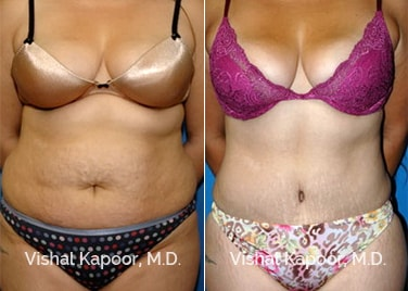Patient 04 Front View Tummy Tuck Beverly Hills Cosmetic Plastic Surgery Doc