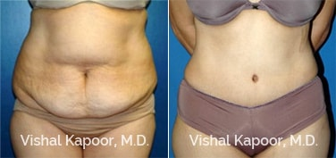 Patient 12 Front View Tummy Tuck Beverly Hills Cosmetic Plastic Surgery Doc