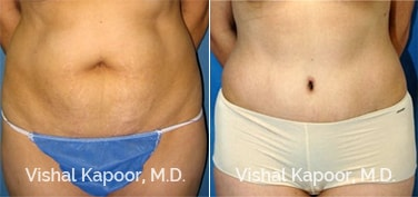 Patient 13 Front View Tummy Tuck Beverly Hills Cosmetic Plastic Surgery Doc