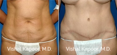 Patient 16 Front View Tummy Tuck Beverly Hills Cosmetic Plastic Surgery Doc