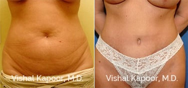 Patient 18 Front View Tummy Tuck Beverly Hills Cosmetic Plastic Surgery Doc
