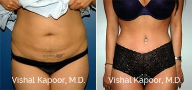 Patient 19 Front View Tummy Tuck Beverly Hills Cosmetic Plastic Surgery Doc