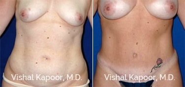 Patient 21 Front View Tummy Tuck Beverly Hills Cosmetic Plastic Surgery Doc