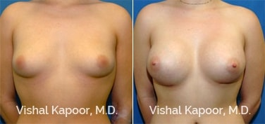 Patient 17 Front View Breast Augmentation Beverly Hills Cosmetic Plastic Surgery Doc