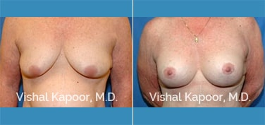 Breast Lift Patient 08