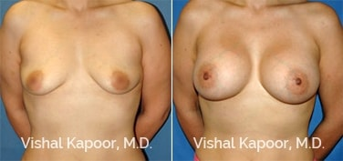 Patient 18 Front View Breast Augmentation Beverly Hills Cosmetic Plastic Surgery Doc