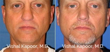 Patient 01 Front View Revision Rhinoplasty Beverly Hills Cosmetic Plastic Surgery Doc