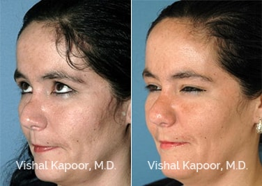 Revision Rhinoplasty Patient 3