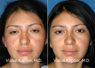 Revision Rhinoplasty Patient 4