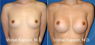 Patient 01 Front View Breast Augmentation Beverly Hills Cosmetic Plastic Surgery Doc