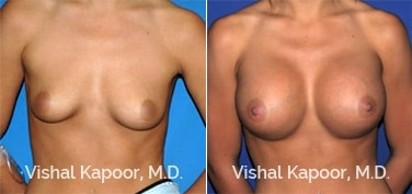 Patient 19 Front View Breast Augmentation Beverly Hills Cosmetic Plastic Surgery Doc