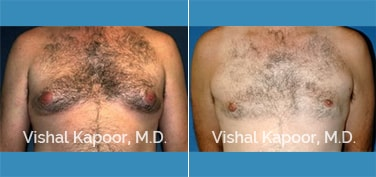 Patient 05 Front View Male Breast Reduction Beverly Hills Cosmetic Plastic Surgery Doc