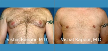 Patient 06 Front View Male Breast Reduction Beverly Hills Cosmetic Plastic Surgery Doc