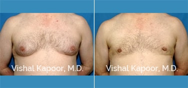 Patient 07 Front View Male Breast Reduction Beverly Hills Cosmetic Plastic Surgery Doc