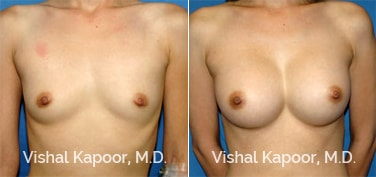 Patient 20 Front View Breast Augmentation Beverly Hills Cosmetic Plastic Surgery Doc