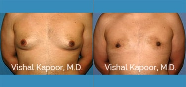 Patient 08 Front View Male Breast Reduction Beverly Hills Cosmetic Plastic Surgery Doc