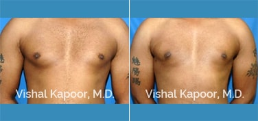 Patient 10 Front View Male Breast Reduction Beverly Hills Cosmetic Plastic Surgery Doc