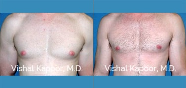 Patient 12 Front View Male Breast Reduction Beverly Hills Cosmetic Plastic Surgery Doc