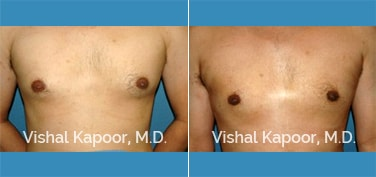 Patient 13 Front View Male Breast Reduction Beverly Hills Cosmetic Plastic Surgery Doc