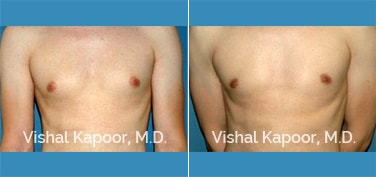 Patient 14 Front View Male Breast Reduction Beverly Hills Cosmetic Plastic Surgery Doc