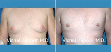 Patient 16 Front View Male Breast Reduction Beverly Hills Cosmetic Plastic Surgery Doc