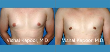 Patient 17 Front View Male Breast Reduction Beverly Hills Cosmetic Plastic Surgery Doc