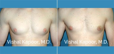 Patient 18 Front View Male Breast Reduction Beverly Hills Cosmetic Plastic Surgery Doc