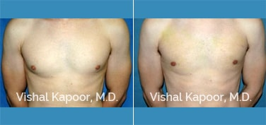 Patient 20 Front View Male Breast Reduction Beverly Hills Cosmetic Plastic Surgery Doc