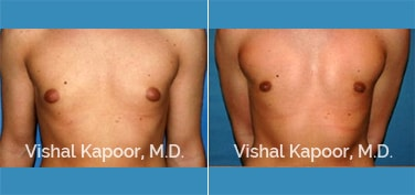 Patient 21 Front View Male Breast Reduction Beverly Hills Cosmetic Plastic Surgery Doc
