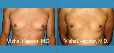 Patient 23 Front View Male Breast Reduction Beverly Hills Cosmetic Plastic Surgery Doc