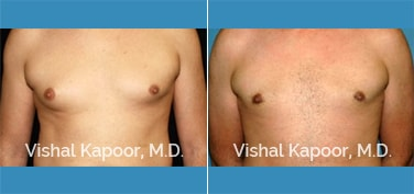 Patient 24 Front View Male Breast Reduction Beverly Hills Cosmetic Plastic Surgery Doc