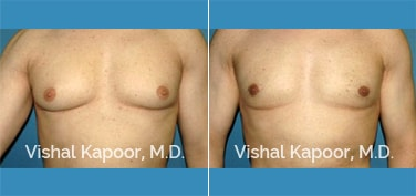 Patient 25 Front View Male Breast Reduction Beverly Hills Cosmetic Plastic Surgery Doc