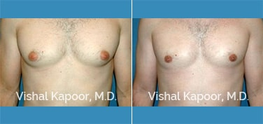 Patient 26 Front View Male Breast Reduction Beverly Hills Cosmetic Plastic Surgery Doc