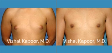 Patient 27 Front View Male Breast Reduction Beverly Hills Cosmetic Plastic Surgery Doc