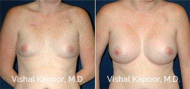 Patient 22 Front View Breast Augmentation Beverly Hills Cosmetic Plastic Surgery Doc