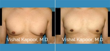 Patient 28 Front View Male Breast Reduction Beverly Hills Cosmetic Plastic Surgery Doc