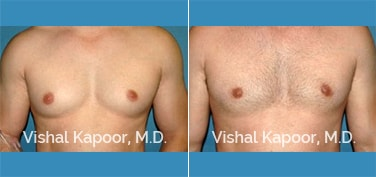 Patient 29 Front View Male Breast Reduction Beverly Hills Cosmetic Plastic Surgery Doc